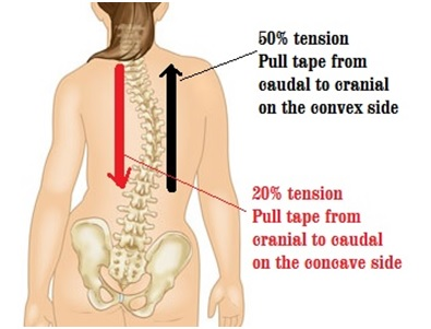 A Scoliosis Tape